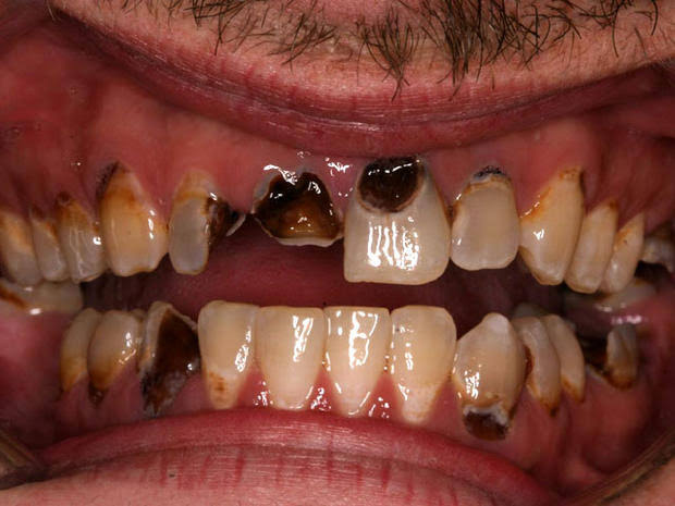 Damage your teeth